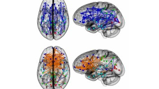 Die Verknüpfungen im Gehirn der Frauen und Männer sind unterschiedlich.